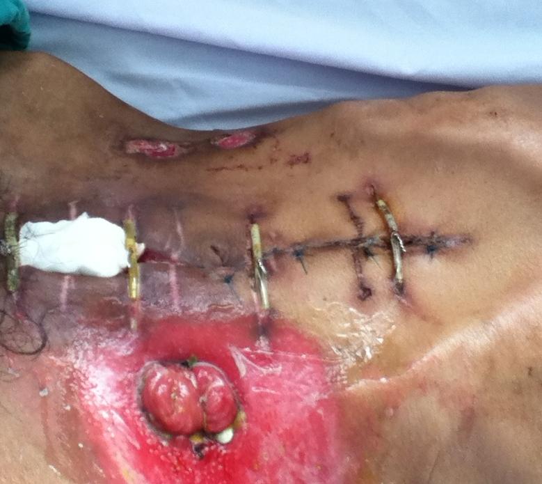 Bệnh án hậu phẫu tuần 2: tổn thương các cơ quan trong ổ bụng   Sinh Viên Y Khoa BV115